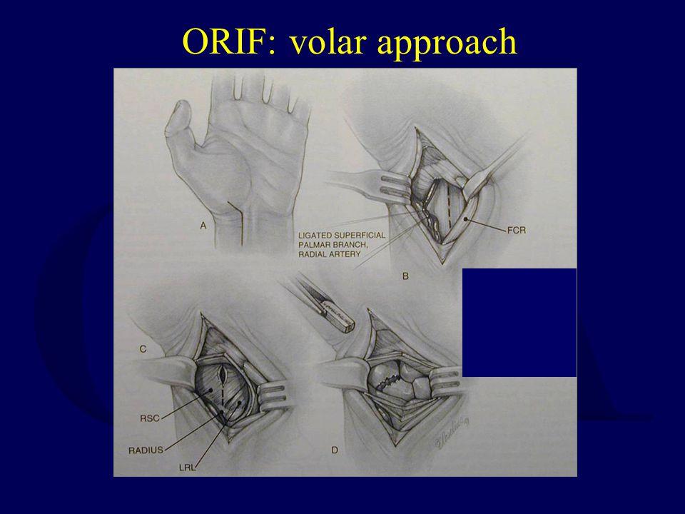 ORIF: volar approach