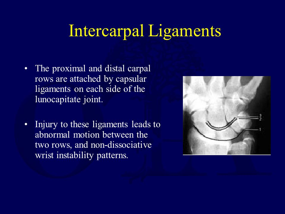 Intercarpal Ligaments The proximal and distal carpal rows are attached by capsular ligaments on each side of the lunocapitate joint. Injury to these l