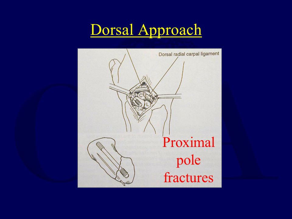 Dorsal Approach Proximal pole fractures