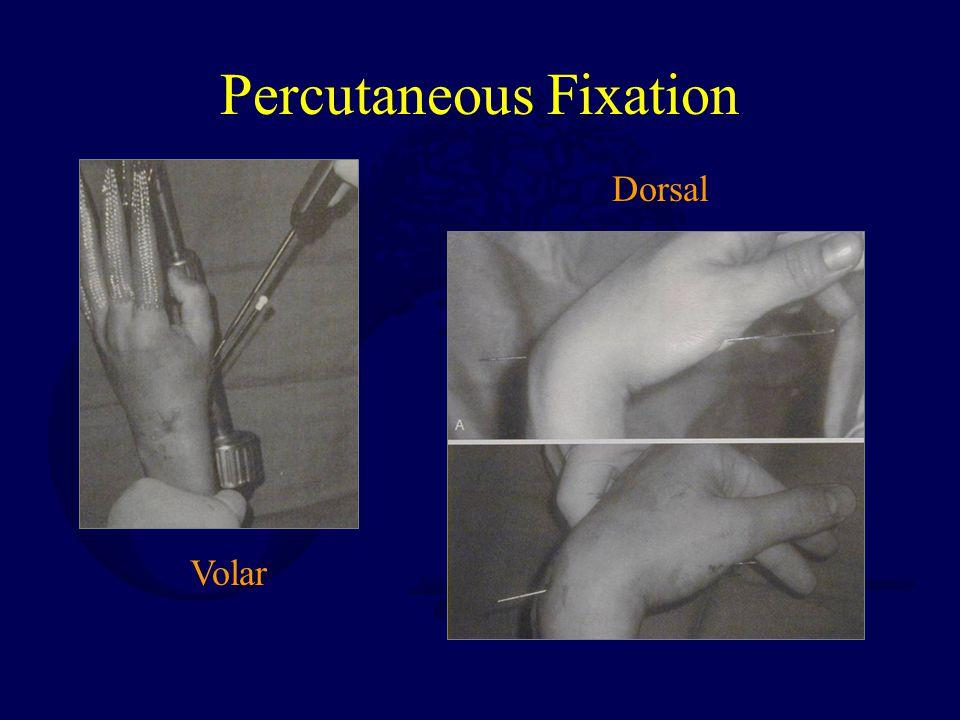 Percutaneous Fixation Volar Dorsal