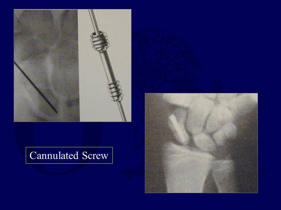 Cannulated Screw