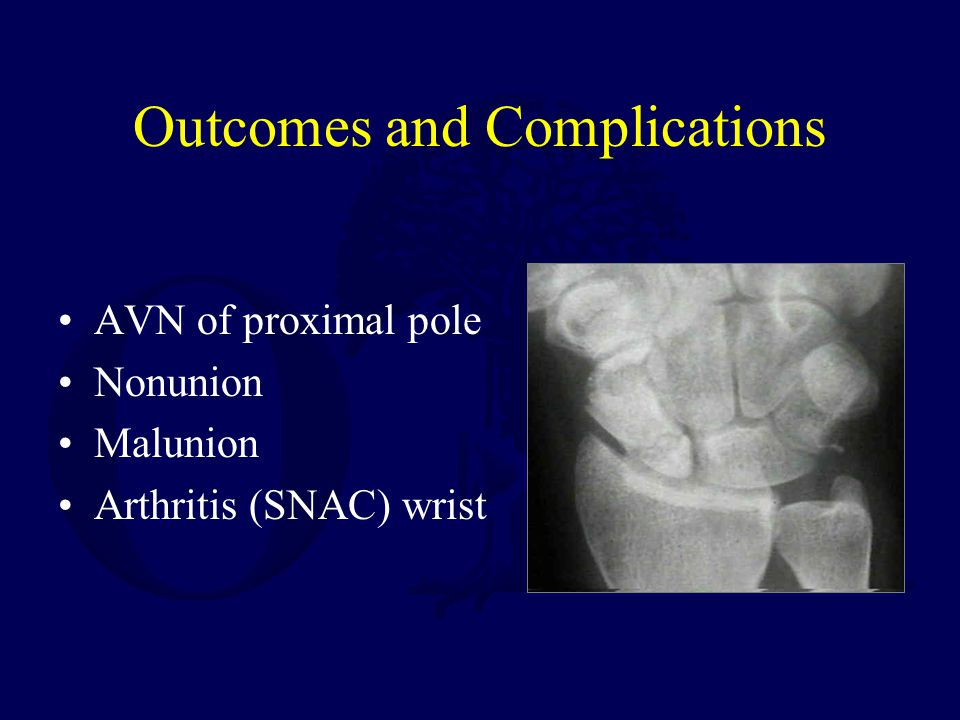 Outcomes and Complications AVN of proximal pole Nonunion Malunion Arthritis (SNAC) wrist
