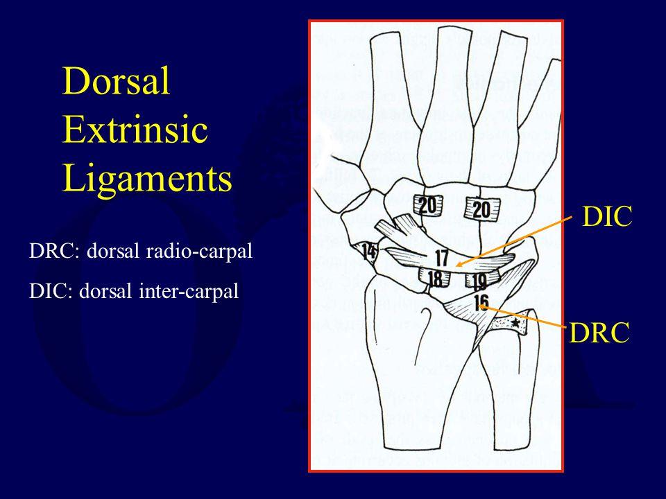 Dorsal Extrinsic Ligaments DIC DRC DRC: dorsal radio-carpal DIC: dorsal inter-carpal