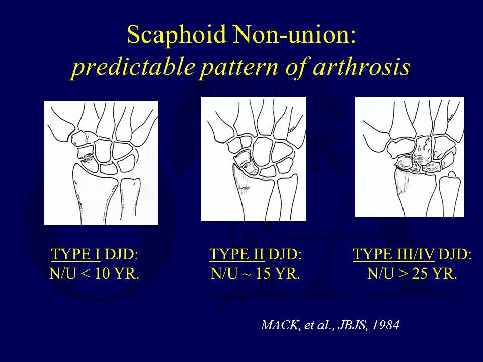 Scaphoid Non-union: predictable pattern of arthrosis TYPE I DJD: N/U < 10 YR. TYPE II DJD: N/U ~ 15 YR. TYPE III/IV DJD: N/U > 25 YR. MACK, et al., JB