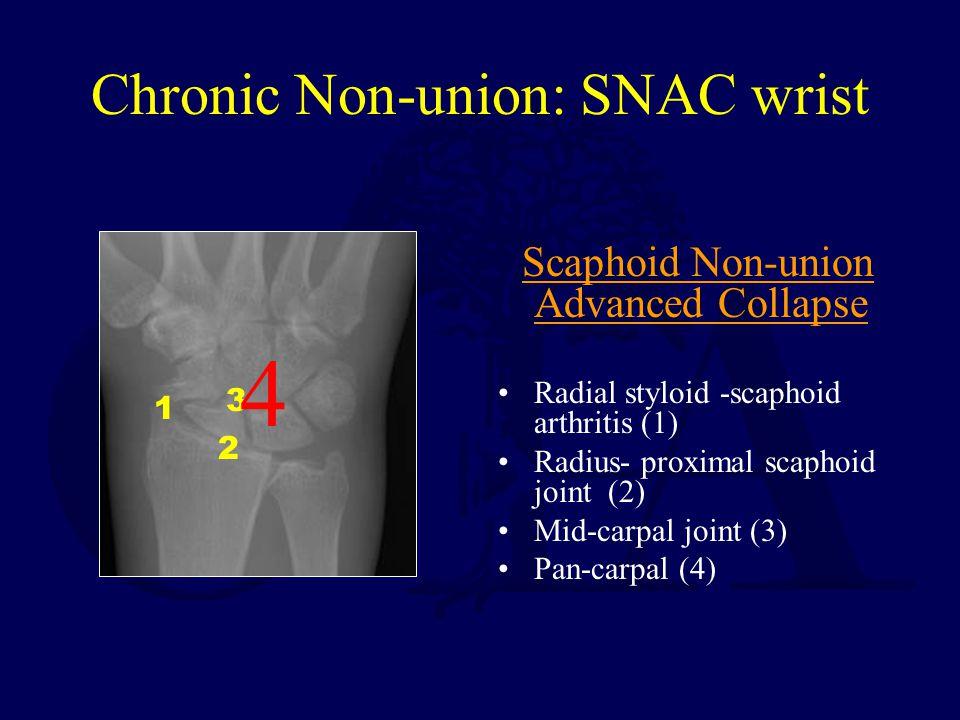 Chronic Non-union: SNAC wrist Scaphoid Non-union Advanced Collapse Radial styloid -scaphoid arthritis (1) Radius- proximal scaphoid joint (2) Mid-carp