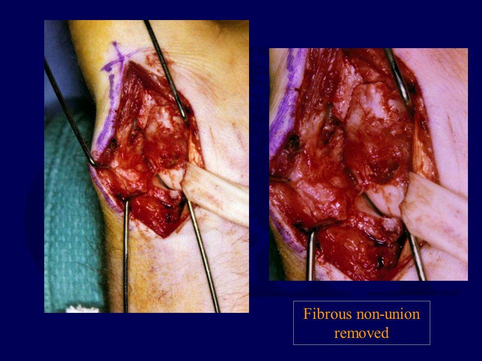 Fibrous non-union removed