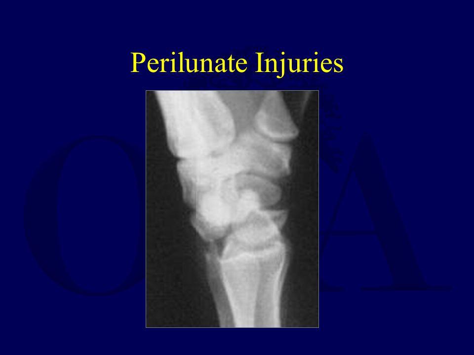 Perilunate Injuries
