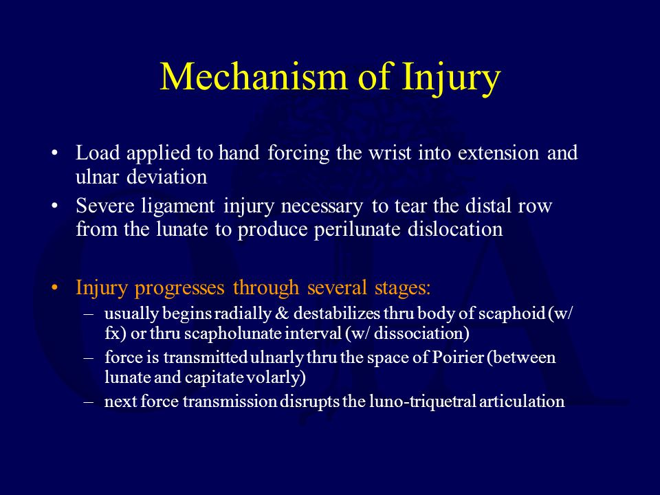 Mechanism of Injury Load applied to hand forcing the wrist into extension and ulnar deviation Severe ligament injury necessary to tear the distal row