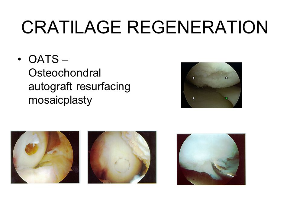 CRATILAGE REGENERATION OATS – Osteochondral autograft resurfacing mosaicplasty