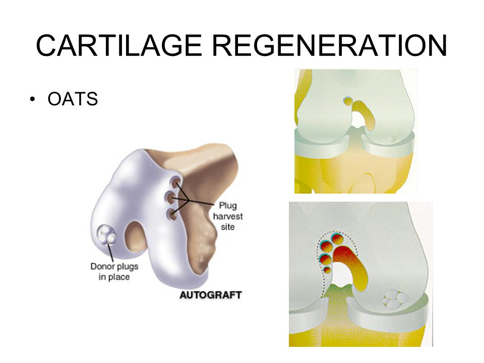 CARTILAGE REGENERATION OATS