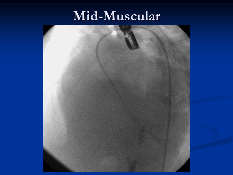 Mid-Muscular