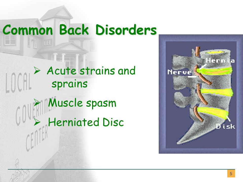5  Acute strains and sprains  Muscle spasm  Herniated Disc Common Back Disorders