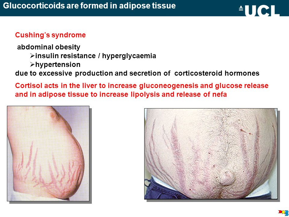 Glucocorticoids are formed in adipose tissue abdominal obesity  insulin resistance / hyperglycaemia  hypertension due to excessive production and secretion of corticosteroid hormones Cortisol acts in the liver to increase gluconeogenesis and glucose release and in adipose tissue to increase lipolysis and release of nefa Cushing's syndrome