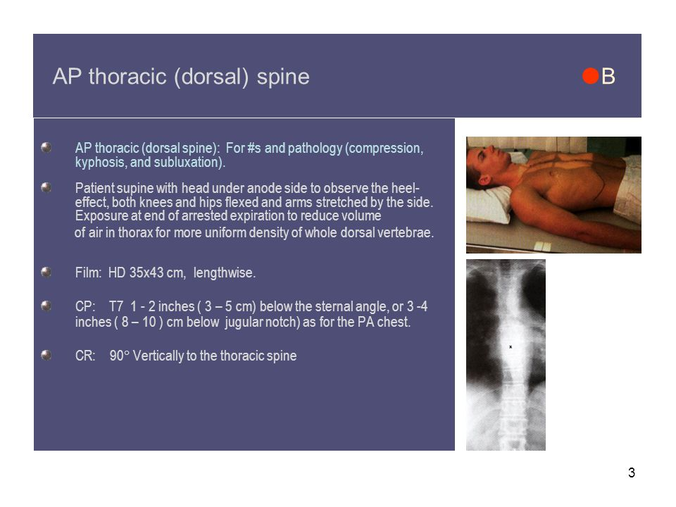 3 AP thoracic (dorsal) spine  B AP thoracic (dorsal spine): For #s and pathology (compression, kyphosis, and subluxation).