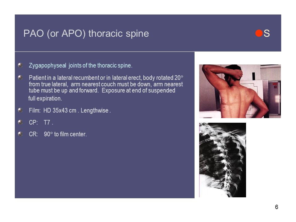 6 PAO (or APO) thoracic spine  S Zygapophyseal joints of the thoracic spine.