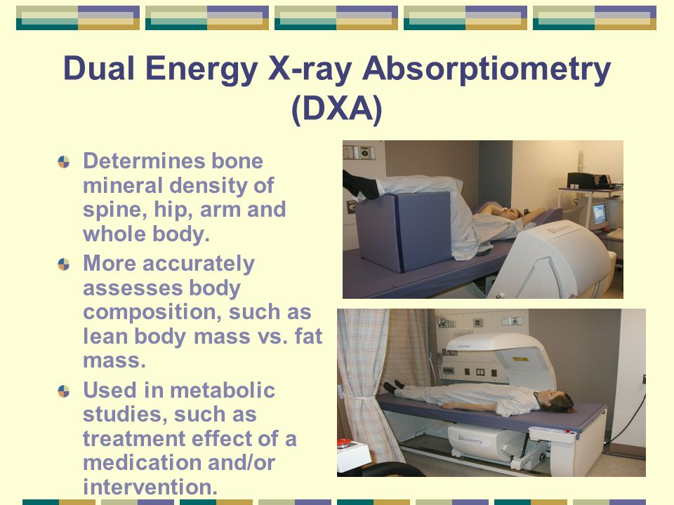 Dual Energy X-ray Absorptiometry (DXA) Determines bone mineral density of spine, hip, arm and whole body. More accurately assesses body composition, s