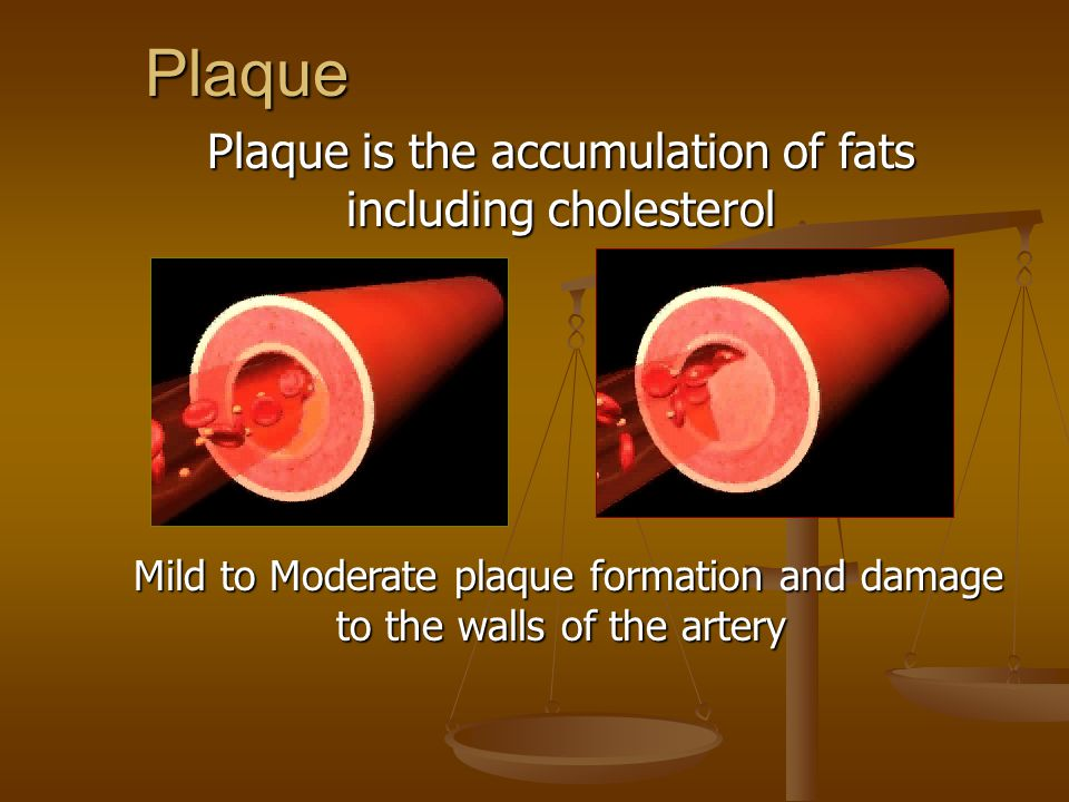 Plaque Plaque is the accumulation of fats including cholesterol Mild to Moderate plaque formation and damage to the walls of the artery Mild to Moderate plaque formation and damage to the walls of the artery
