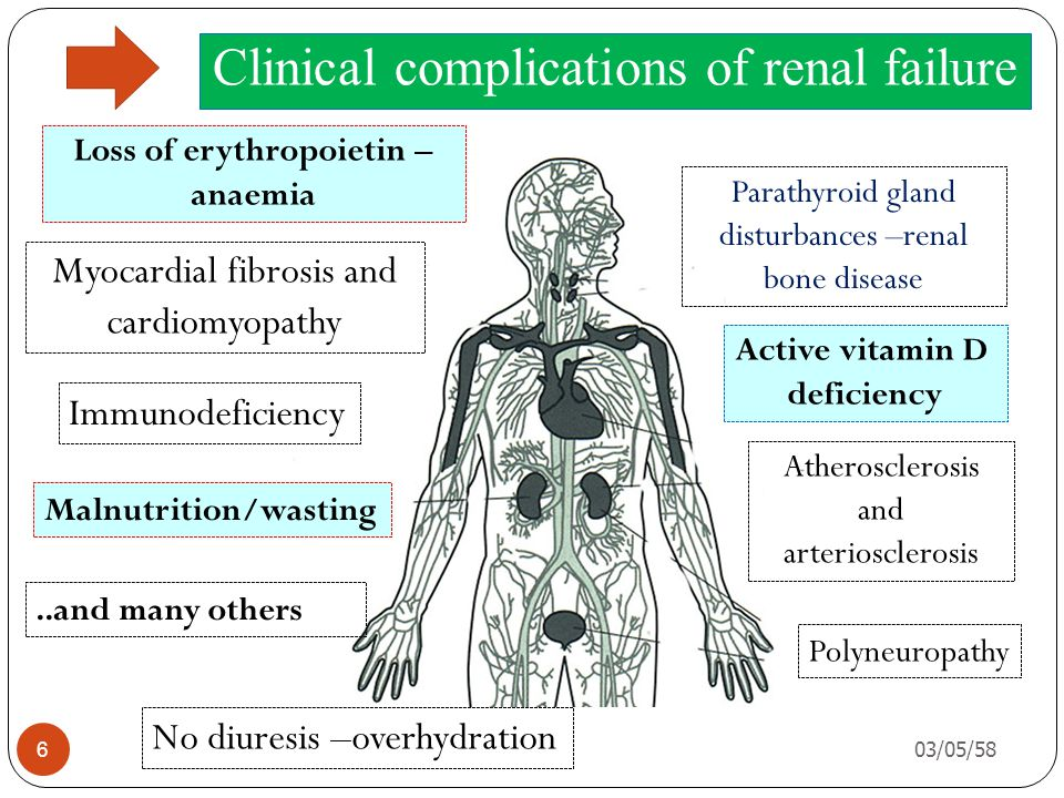 Clinical complications of renal failure Parathyroid gland disturbances –renal bone disease Active vitamin D deficiency Atherosclerosis and arteriosclerosis Polyneuropathy No diuresis –overhydration..and many others Malnutrition/wasting Immunodeficiency Myocardial fibrosis and cardiomyopathy Loss of erythropoietin – anaemia 03/05/58 6