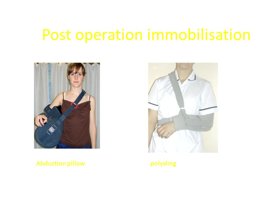 Post operation immobilisation Abduction pillowpolysling