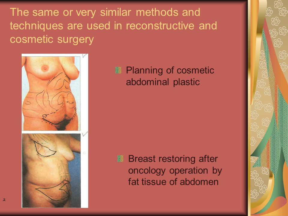 The same or very similar methods and techniques are used in reconstructive and cosmetic surgery Breast restoring after oncology operation by fat tissue of abdomen Planning of cosmetic abdominal plastic д