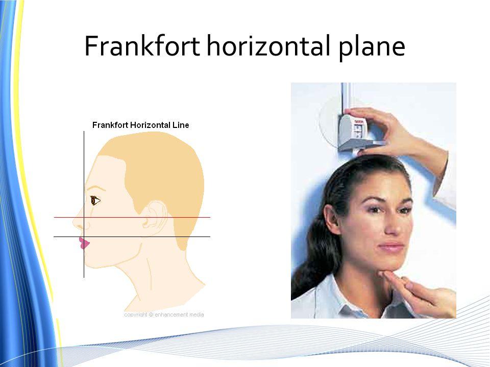 Frankfort horizontal plane