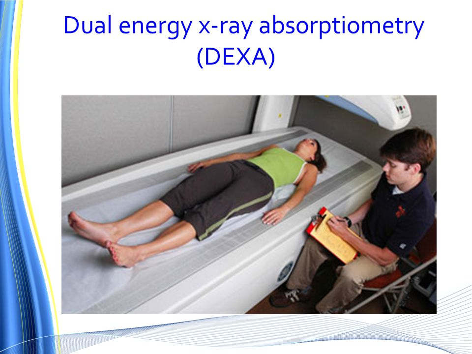 Dual energy x-ray absorptiometry (DEXA)