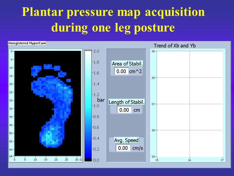 The whole population mean values, the standard deviations and the percentage increases of the postural stability indexes from non fatigued to fatigued condition standing on the dominant leg Weight on dominant leg increase 36%21%38%31%32%54%