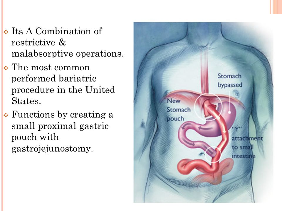  Its A Combination of restrictive & malabsorptive operations.  The most common performed bariatric procedure in the United States.  Functions by cr