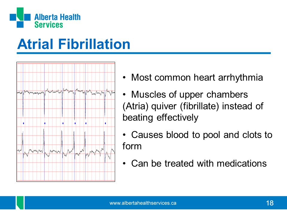 18 Atrial Fibrillation Most common heart arrhythmia Muscles of upper chambers (Atria) quiver (fibrillate) instead of beating effectively Causes blood to pool and clots to form Can be treated with medications