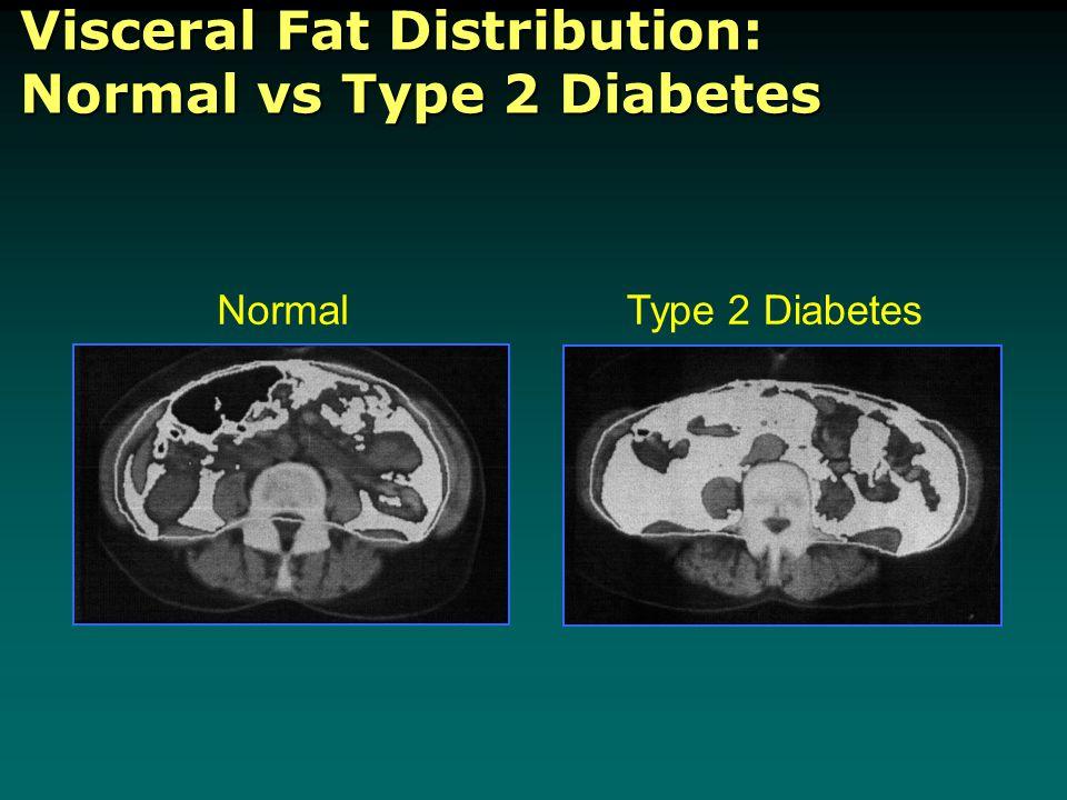 Visceral Fat Distribution: Normal vs Type 2 Diabetes Type 2 DiabetesNormal