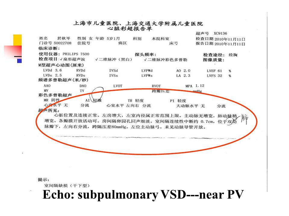 Echo: subpulmonary VSD---near PV