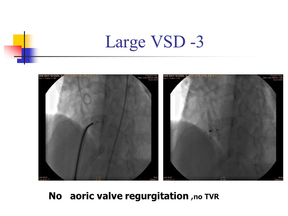 Large VSD -3 No aoric valve regurgitation,no TVR