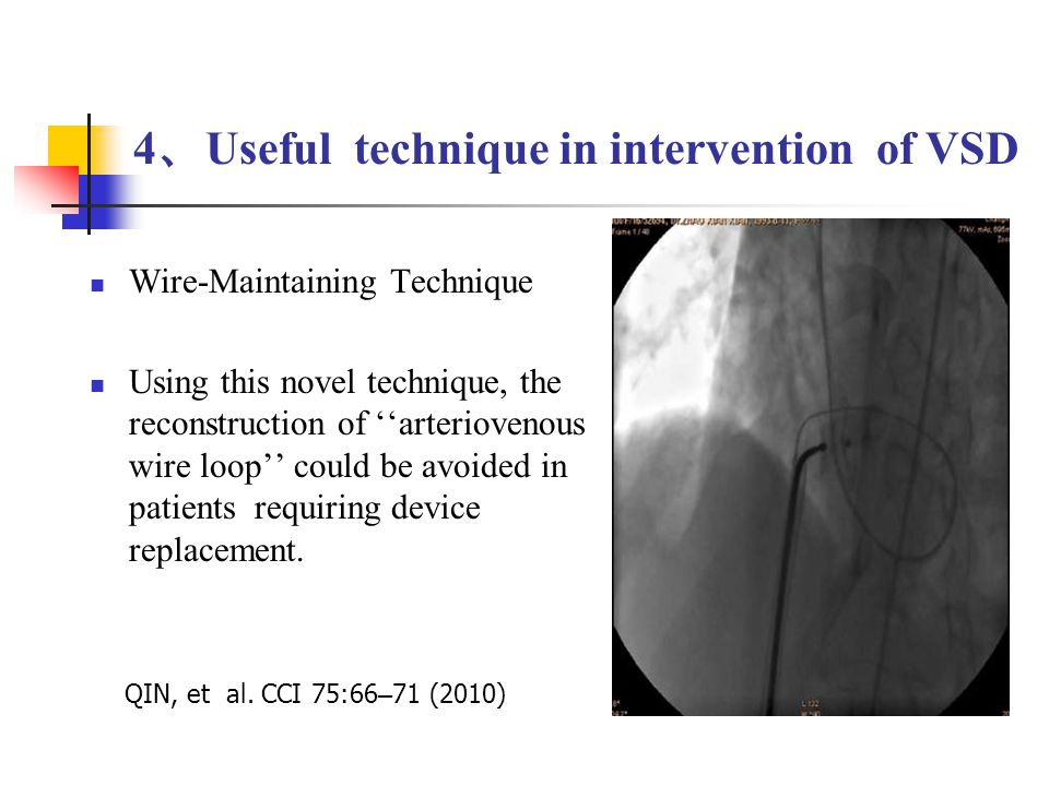 Wire-Maintaining Technique Using this novel technique, the reconstruction of ''arteriovenous wire loop'' could be avoided in patients requiring device