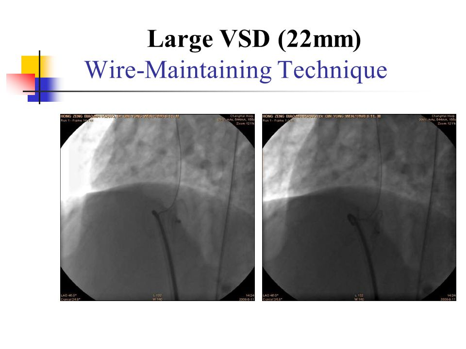 Large VSD (22mm) Wire-Maintaining Technique