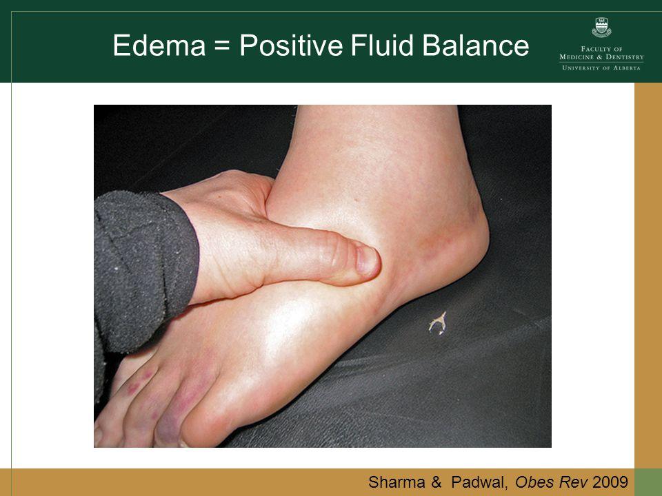 Edema = Positive Fluid Balance Sharma & Padwal, Obes Rev 2009