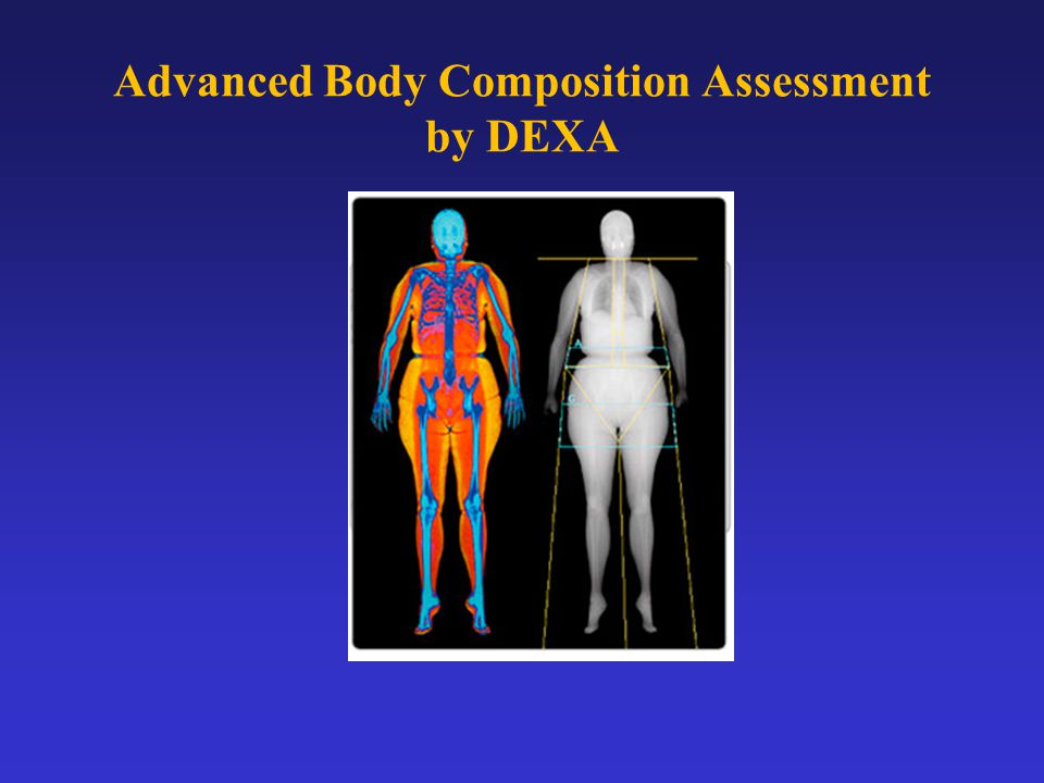 Advanced Body Composition Assessment by DEXA