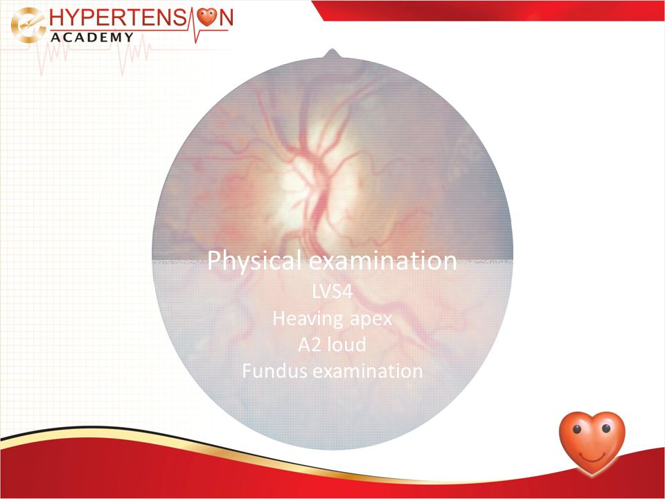 Physical examination LVS4 Heaving apex A2 loud Fundus examination