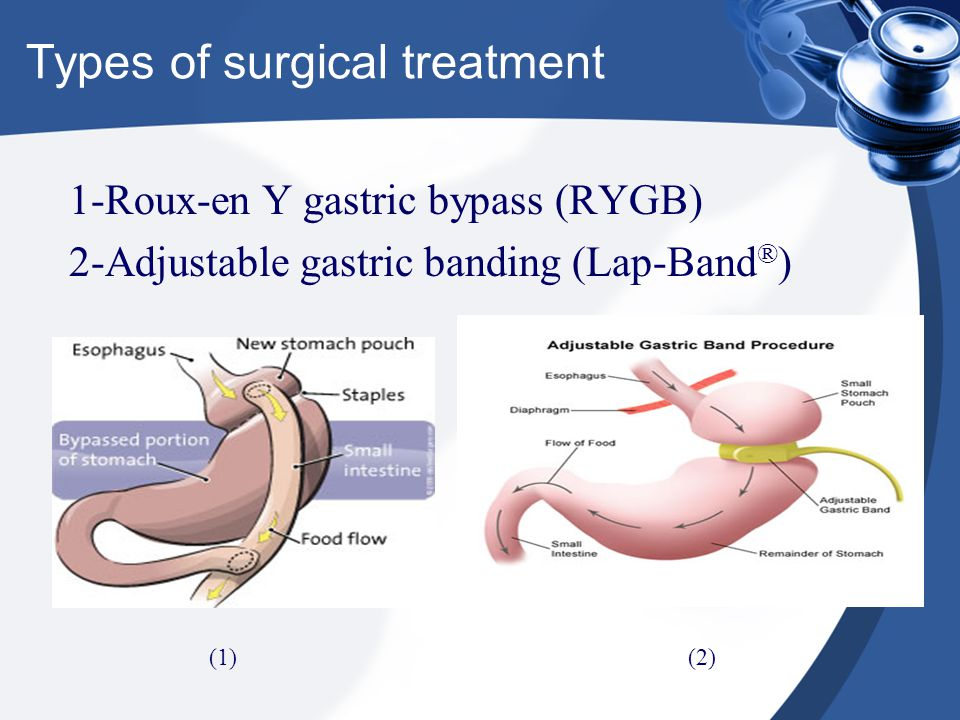 Types of surgical treatment 1-Roux-en Y gastric bypass (RYGB) 2-Adjustable gastric banding (Lap-Band ® ) (1)(2)