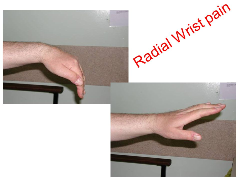 Radial Wrist pain