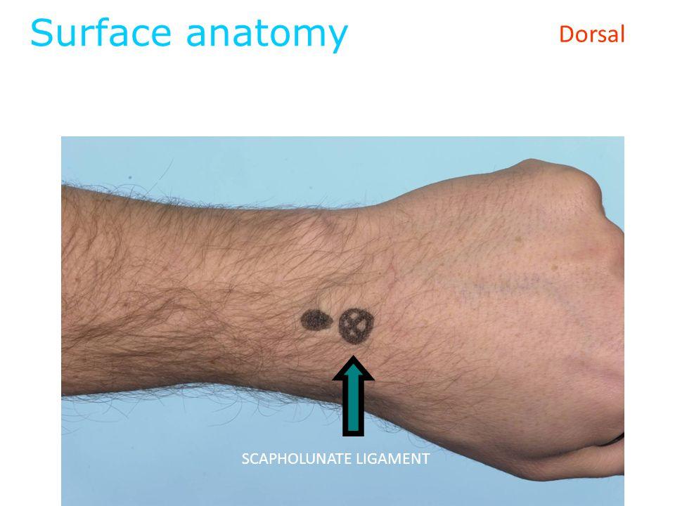 Surface anatomy Dorsal SCAPHOLUNATE LIGAMENT