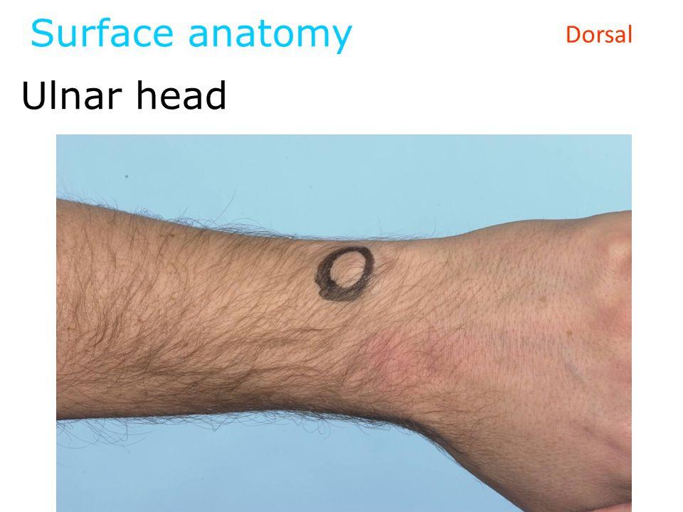 Surface anatomy Ulnar head Dorsal
