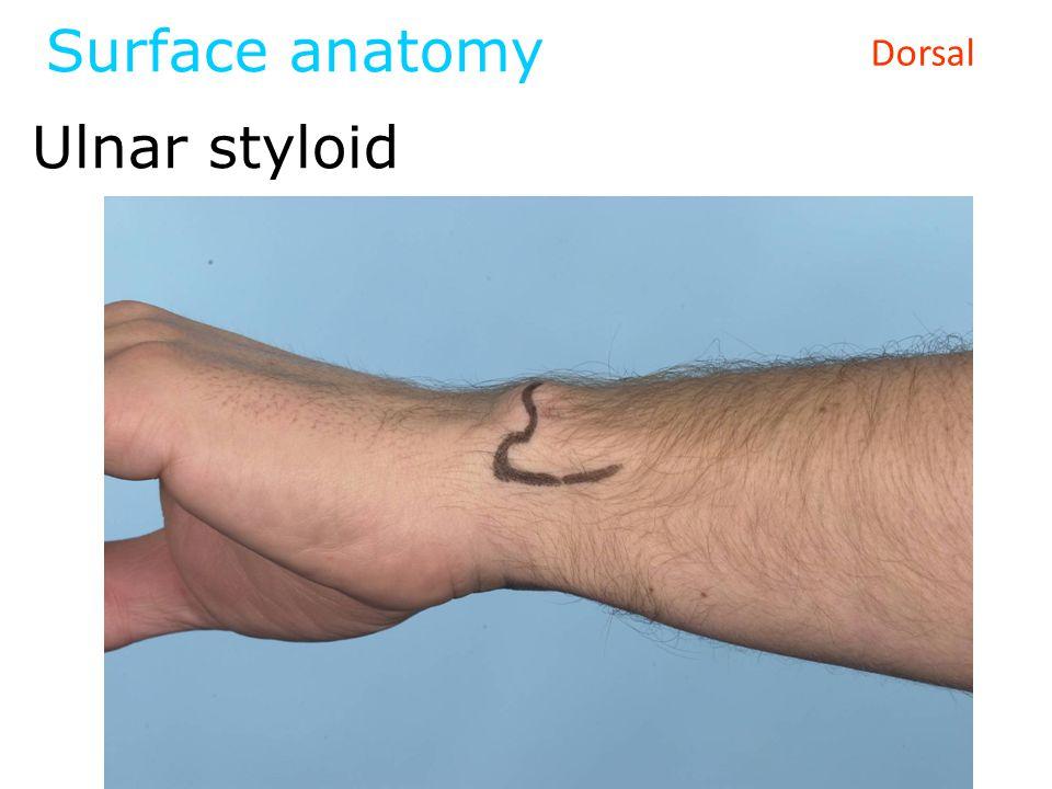 Surface anatomy Ulnar styloid Dorsal