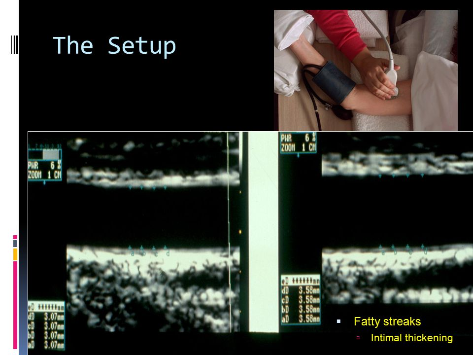 The Setup  Fatty streaks  Intimal thickening