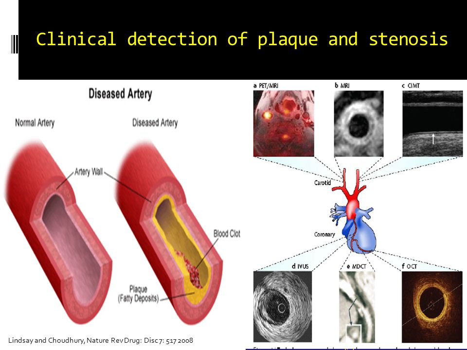 Pre-clinical and sub-clinical detection of atherosclerosis
