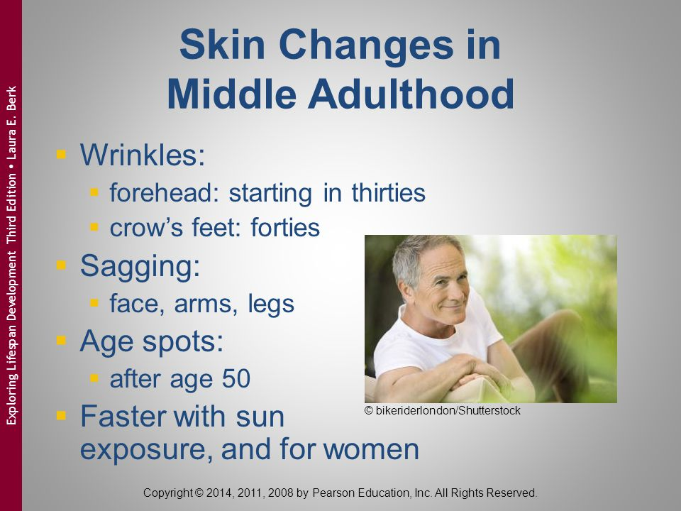 Skin Changes in Middle Adulthood  Wrinkles:  forehead: starting in thirties  crow's feet: forties  Sagging:  face, arms, legs  Age spots:  afte