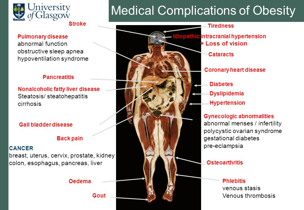 Medical Complications of Obesity Phlebitis venous stasis Venous thrombosis Coronary heart disease Pulmonary disease abnormal function obstructive slee