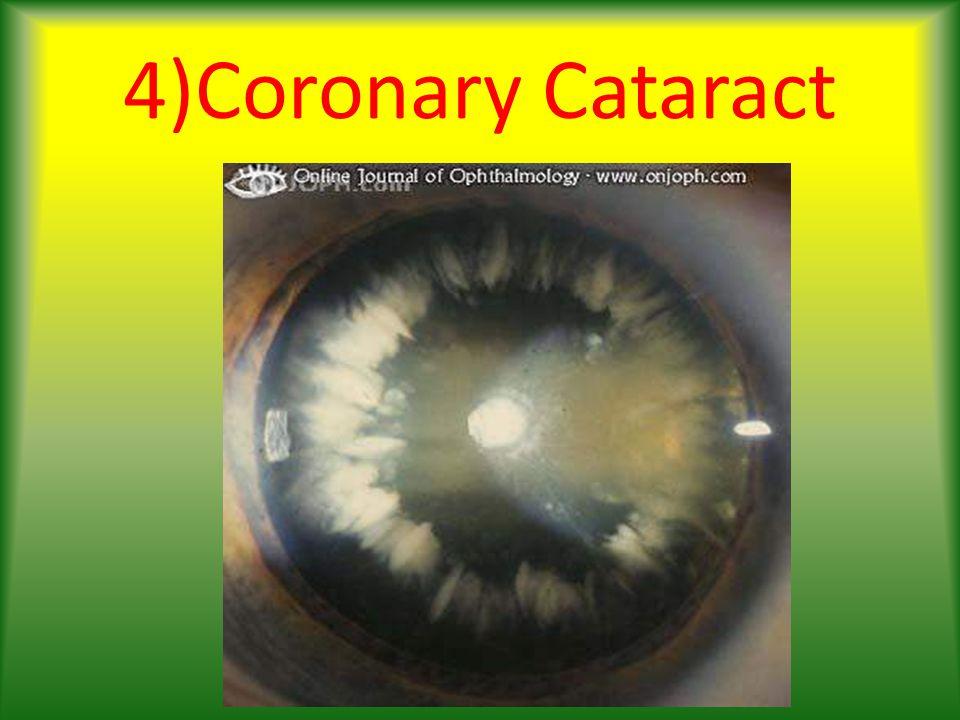 4)Coronary Cataract