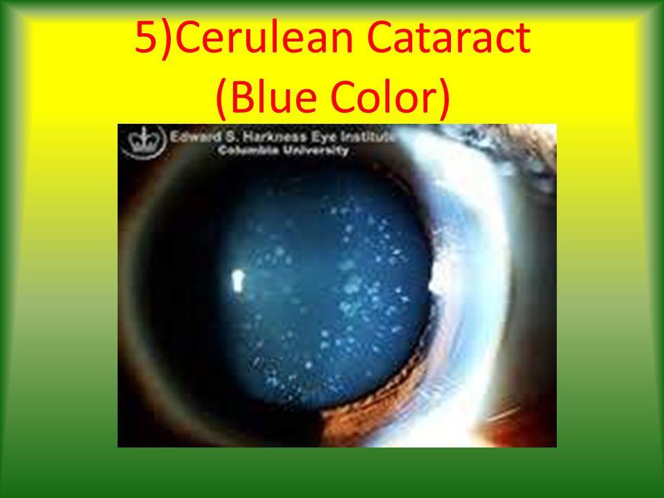 5)Cerulean Cataract (Blue Color)