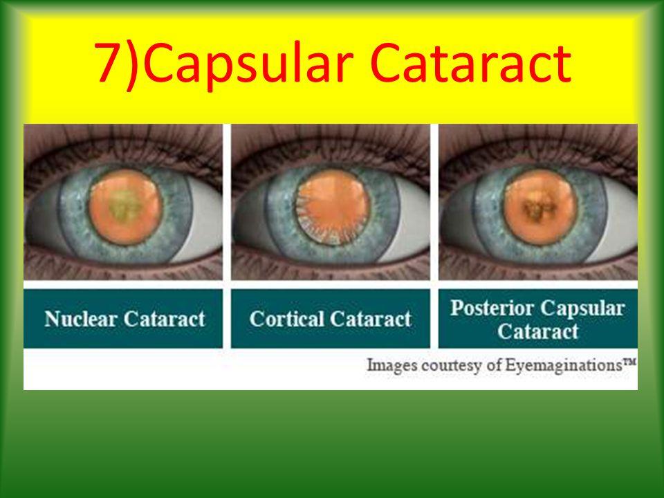 7)Capsular Cataract