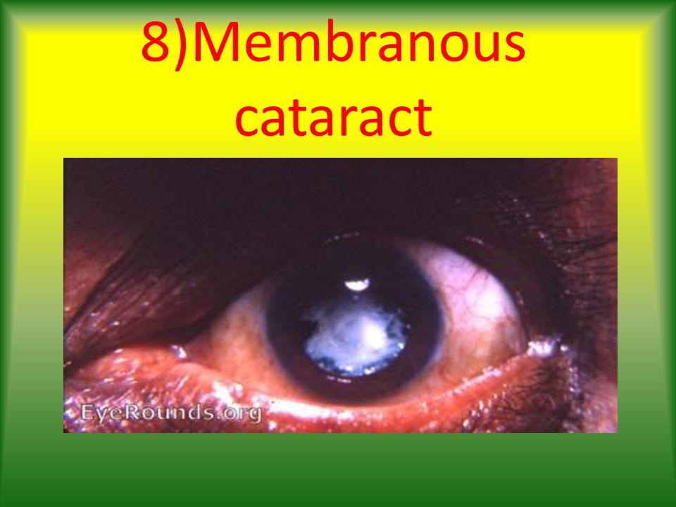 8)Membranous cataract